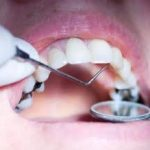 Mercury-Free Dentists—Pioneers and Catalysts for 21st Century Health Care