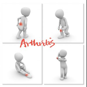 Active Living With Arthritis